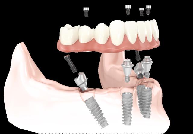 Имплантация зубов в брянске клиники цены